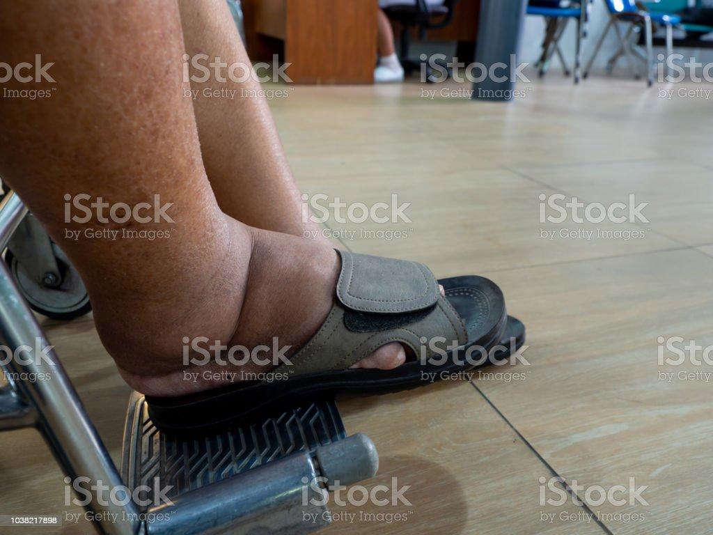 Schuhe für Diabetiker Richtige Schuhe zum Schutz der Füße