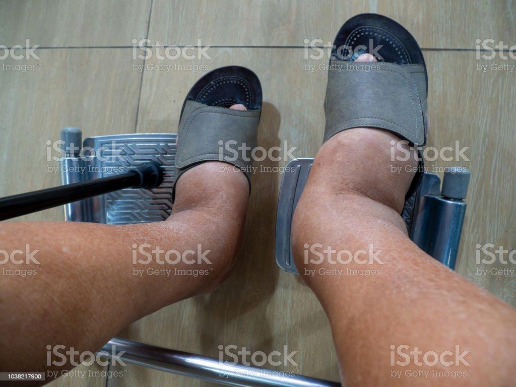 diabetes abrir dolor de pies