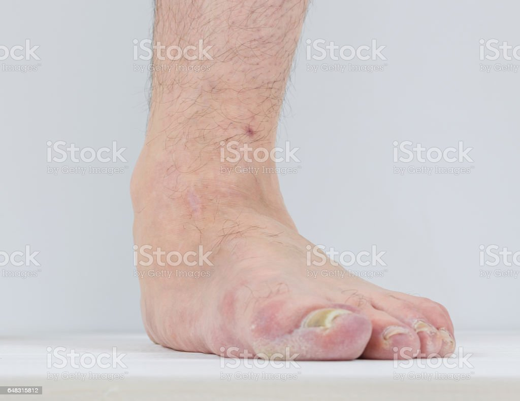Men with signs of flatfoot foot and nail fungus. stock photo