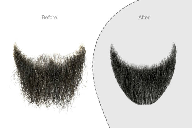 Men's beard before and after hair salon Men's beard before and after hair salon facial hair stock pictures, royalty-free photos & images