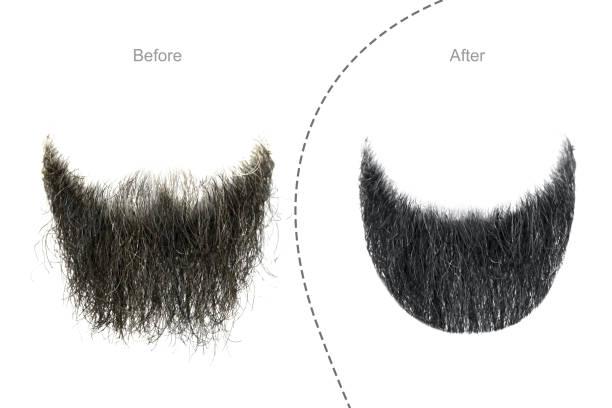 mannen baard voor en na haar salon - hair grow cyclus stockfoto's en -beelden