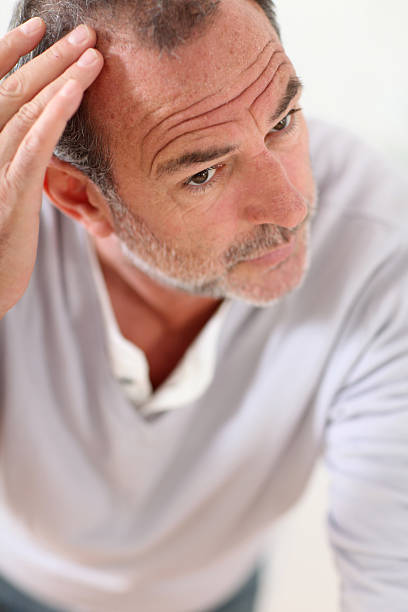 Men's hair concern stock photo