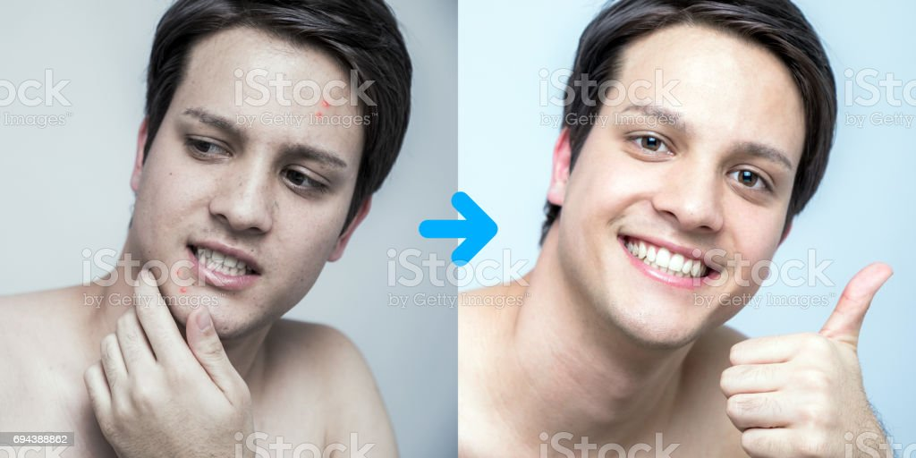 men's pimple treatment before after image, acne treatment, men's skin care stock photo