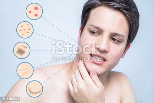 istock men's skin trouble. pimple, freckle, spot, wrinkle, saggy. 828469318