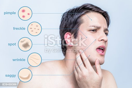 istock men's skin trouble. pimple, freckle, spot, wrinkle, saggy. 828469386