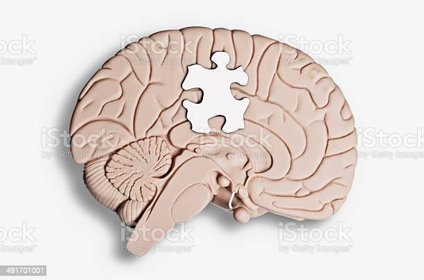 Mental health picture id491701001?b=1&k=6&m=491701001&s=612x612&h=afsip2fotvse2uegdcvn3jrnjf9y  clckva5xw3xe8=