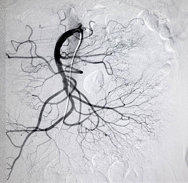 mesenteric artery DSA image – Foto