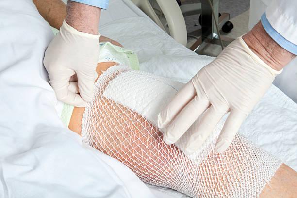 mesh holds a knee replacement bandage in place. - menselijke ledematen stockfoto's en -beelden