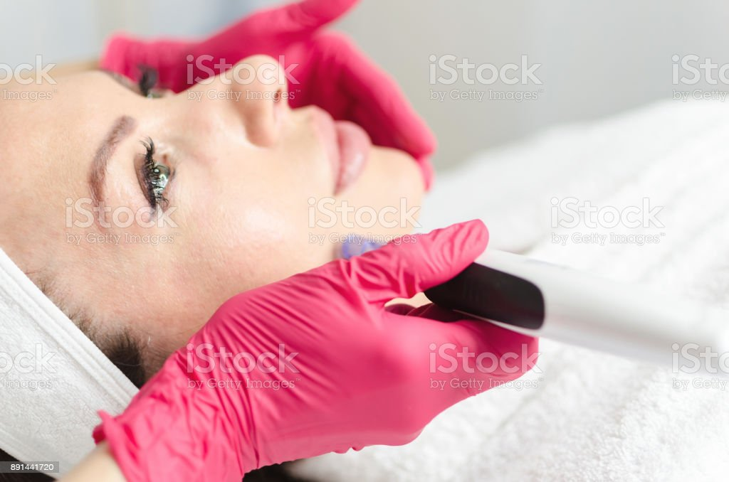 Mesotherapy and dermapen on female face stock photo