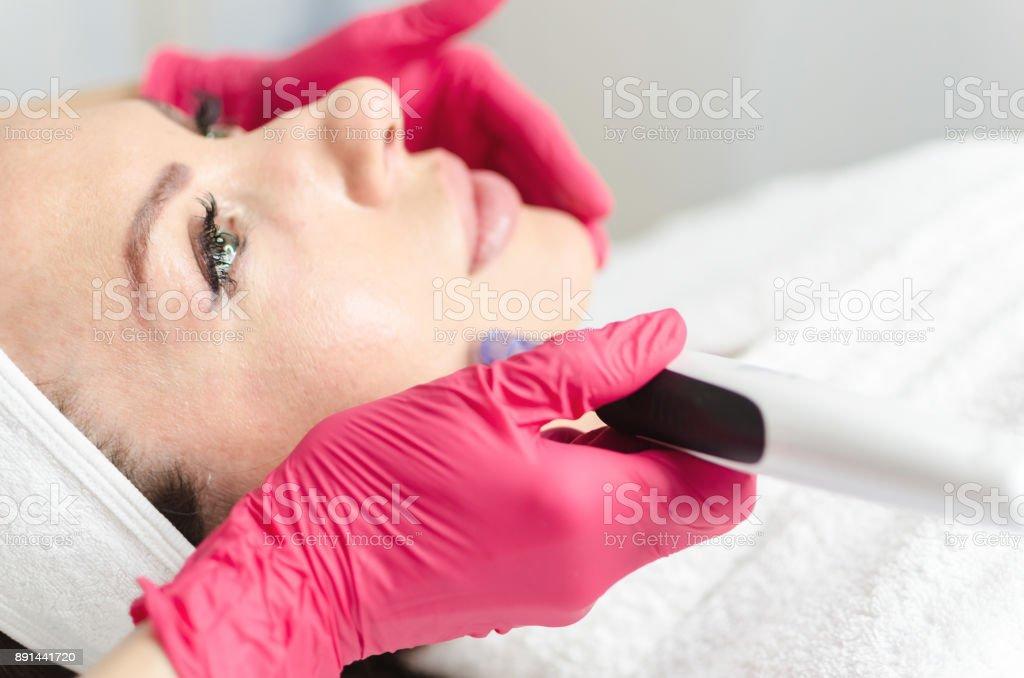 Mesoterapia e dermapen no rosto feminino - foto de acervo