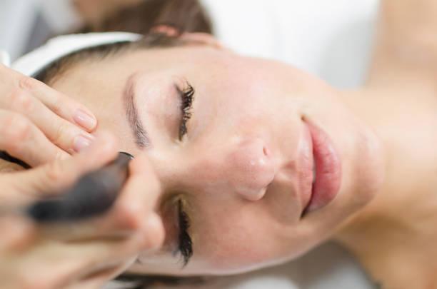 Mesoterapia sem tratamento agulhas no rosto feminino - foto de acervo