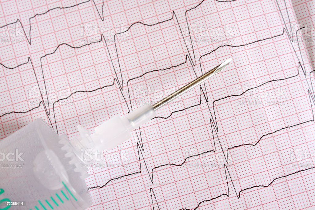 metal medical needles on the background paper ECG stock photo