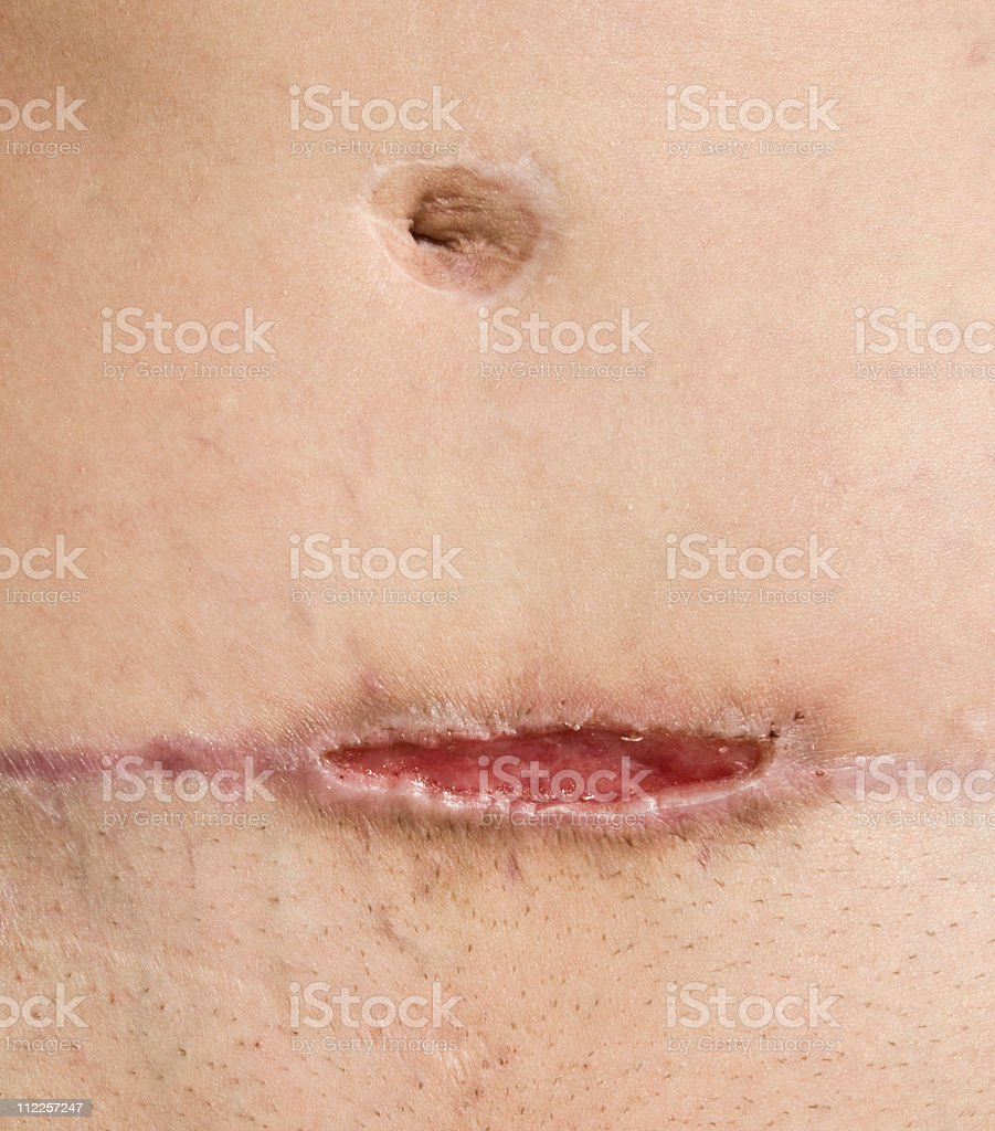 Methicillen Resistant Staphylococcus Aureus Abdomen stock photo
