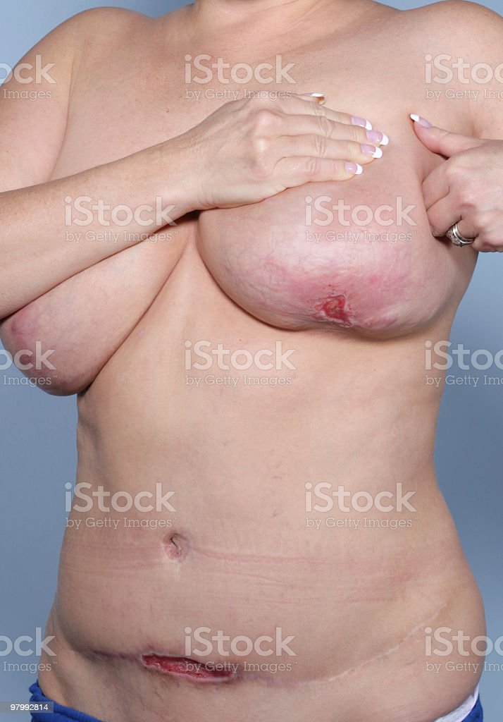 Methicillen Resistant Staphylococcus Aureus Body royalty-free stock photo