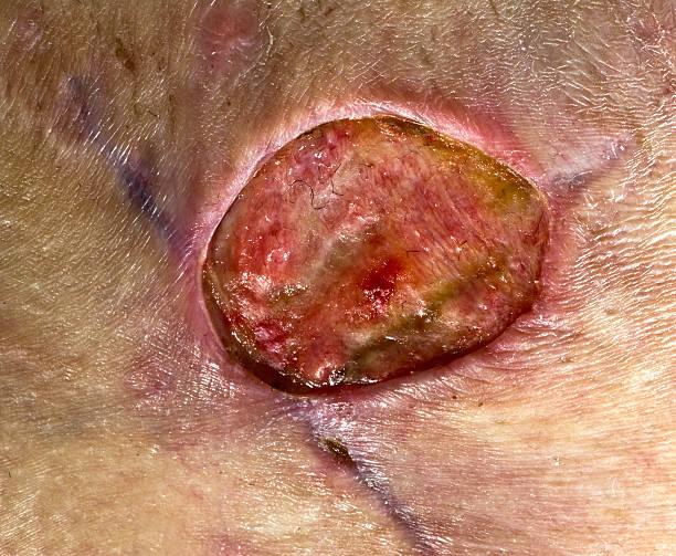methicillen resistant staphylococcus aureus - resistance bacteria bildbanksfoton och bilder