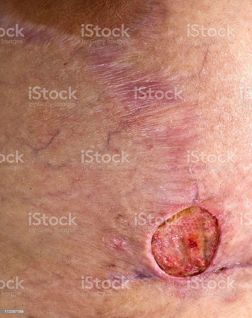 Methicillin Resiststant Staphylococcus Aureus breast stock photo
