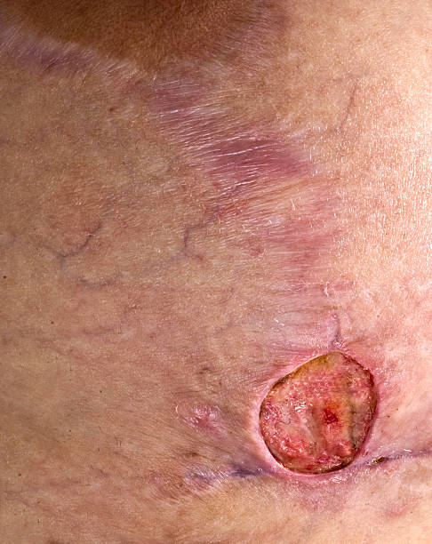 methicillin resiststant staphylococcus aureus breast - open wounds stock photos and pictures
