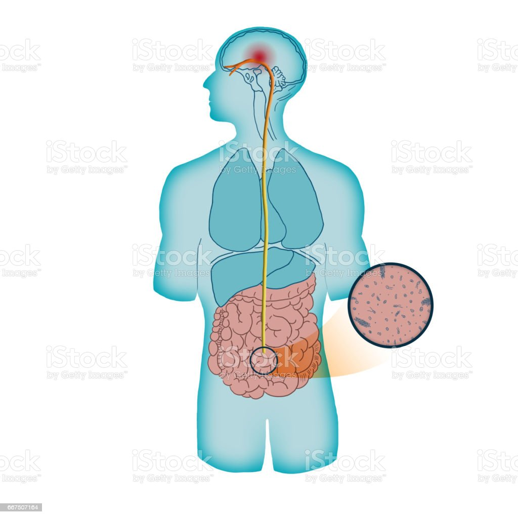 Microbiome causing migraine stock photo