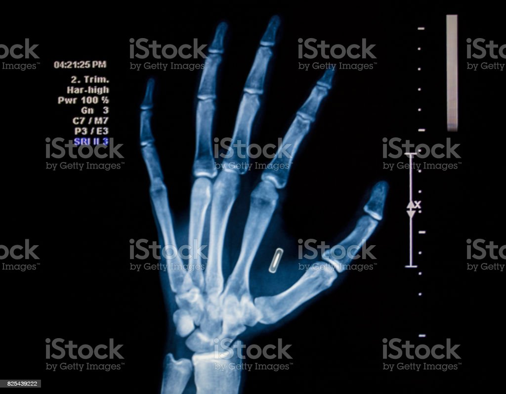 Microchip Hand Implant stock photo