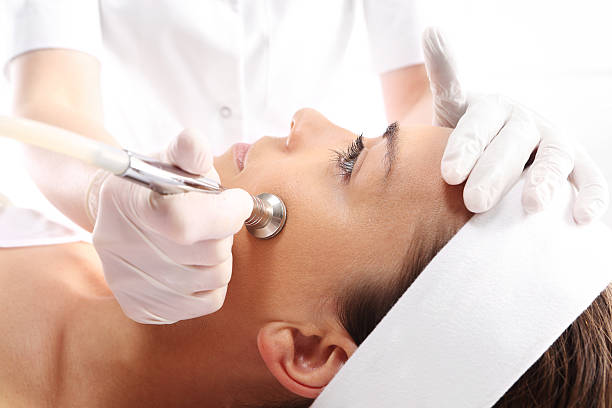 microdermabrasion - peeled stock photos and pictures