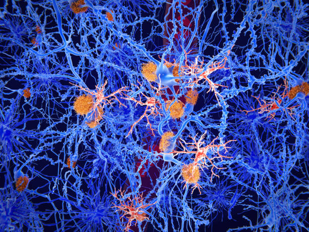 Microglia cells (red) play an important role in the pathogenesis of Alzheimer's disease stock photo