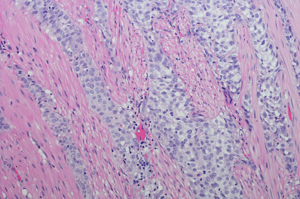 Micrograph Invasive urothelial carcinoma high grade. H&E Stain – Foto