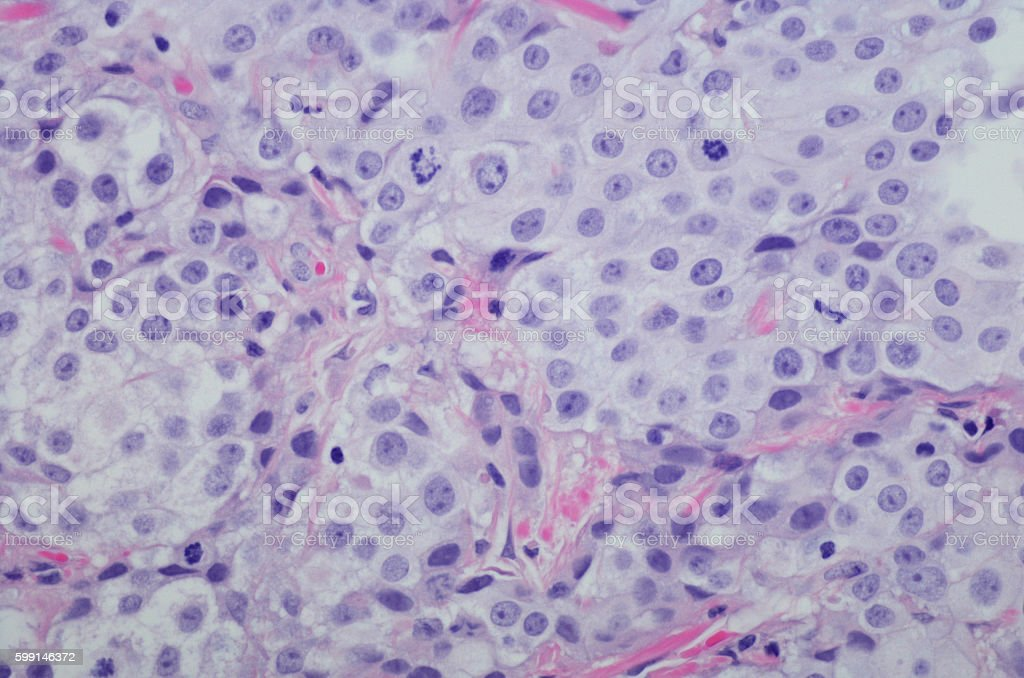 Micrograph Invasive urothelial carcinoma high grade. H&E Stain stock photo