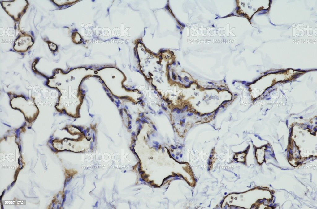 Micrograph of angiosarcoma of the breast stock photo
