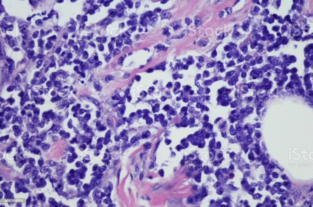 Micrograph of Burkitt lymphoma stock photo
