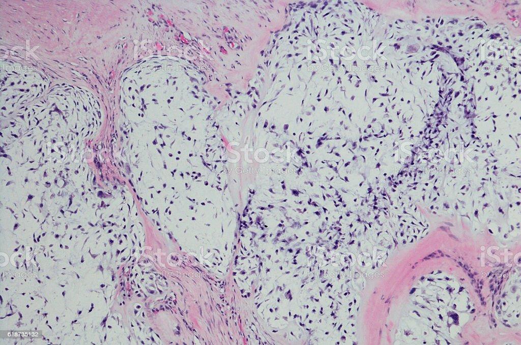 Micrograph of Chondrosarcoma. stock photo