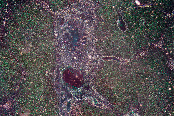 micrograph of liver tissue stock photo
