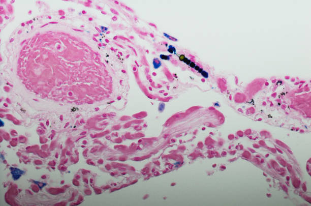 """Micrograph of Mesothelioma with ferruginous bodies. Ferruginous bodies are typically indicative of asbestos inhalation (when the presence of asbestos is verified they are called """"asbestos bodies""""). In this case they are fibers of asbestos coated with an iron-rich material derived from proteins such as ferritin and hemosiderin. light micrograph stock pictures, royalty-free photos & images"""