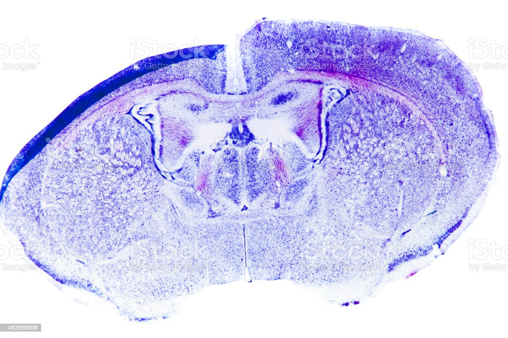 Micrograph of rat brain stock photo
