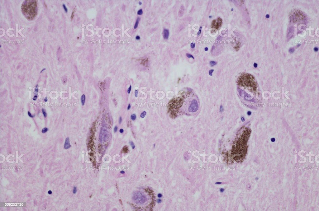 Micrograph of substantia nigra stock photo