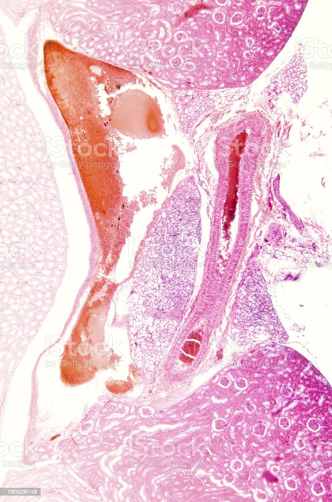 Mikroskopische Abschnitt Kidney Gewebe Stock-Fotografie und mehr ...