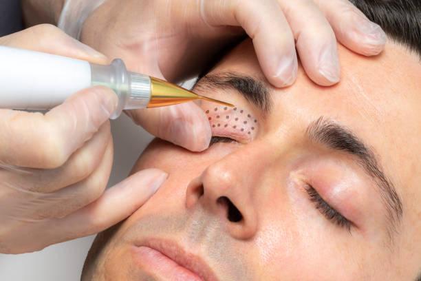 Middle aged man having laser plasma pen therapy on eyelids. stock photo