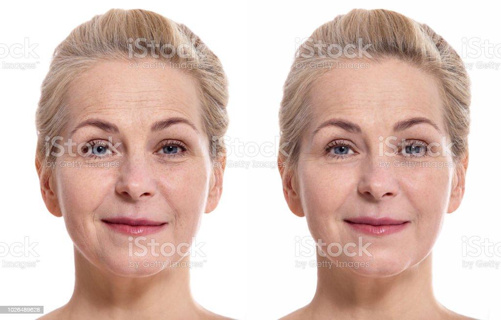中年では、化粧品の手順の前後に、女性の顔。整形外科のコンセプトです。 ロイヤリティフリーストックフォト