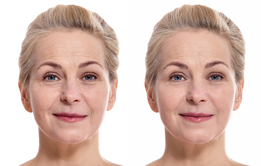 istock Middle aged woman face before and after cosmetic procedure. Plastic surgery concept. 1026489628