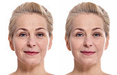 Middle aged woman face before and after cosmetic procedure. Plastic surgery concept.