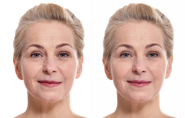 Middle aged woman face before and after cosmetic procedure. Plastic surgery concept. Woman face before and after cosmetic procedure. Plastic surgery concept. wrinkled stock pictures, royalty-free photos & images