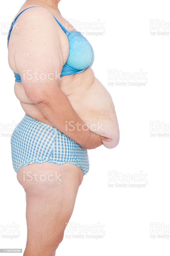 Überschüssige Haut nach dem Ausdünnen der Arme