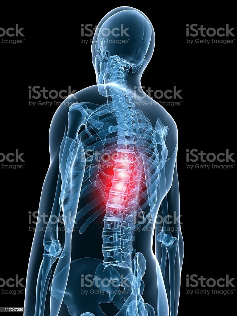 middle backache royalty-free stock photo