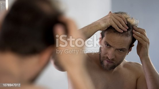 1162960006istockphoto Middle-aged man looking in mirror at his bald patches, hair loss problem 1076947012