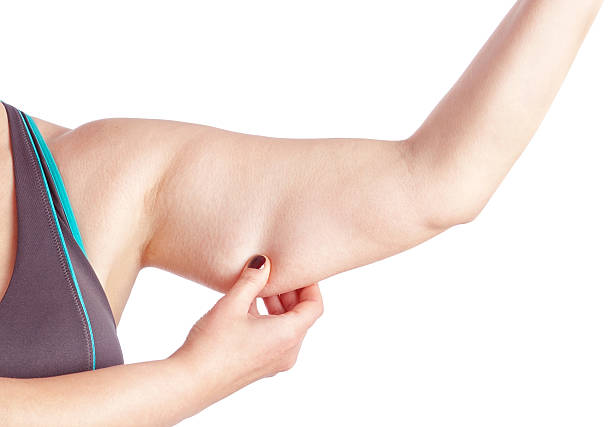 Middle-aged woman holding a hand with excess fat. stock photo