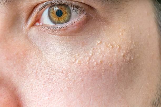 Milia (Milium) - pimples around eye on skin. stock photo