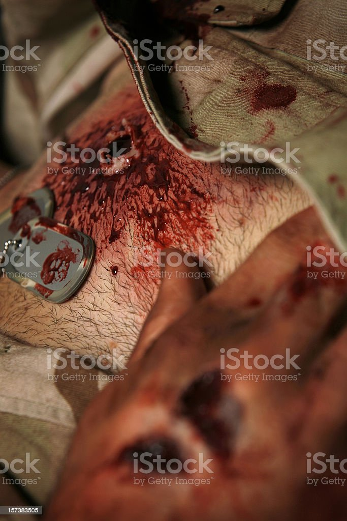 Military Man With High Caliber Gun Shot Wound Left Chest stock photo
