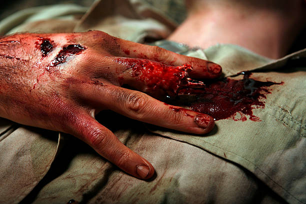 Military Man With Severed Finger stock photo