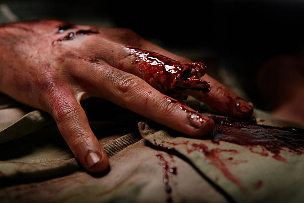 military man with severed finger - blood stock photos and pictures