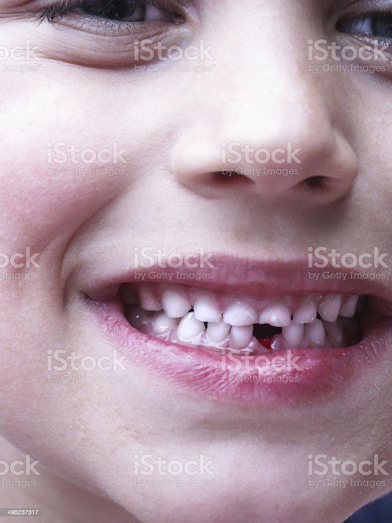 milkteeth stock photo