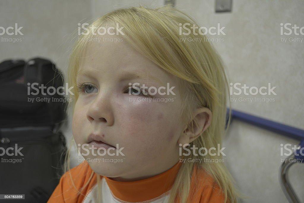 Misquitos Are Evil! stock photo